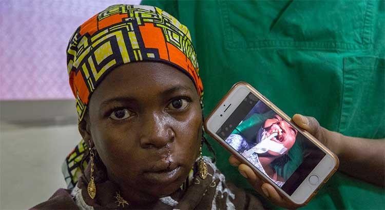 Lippen Kiefer Gaumen Spalten OP Kamerun